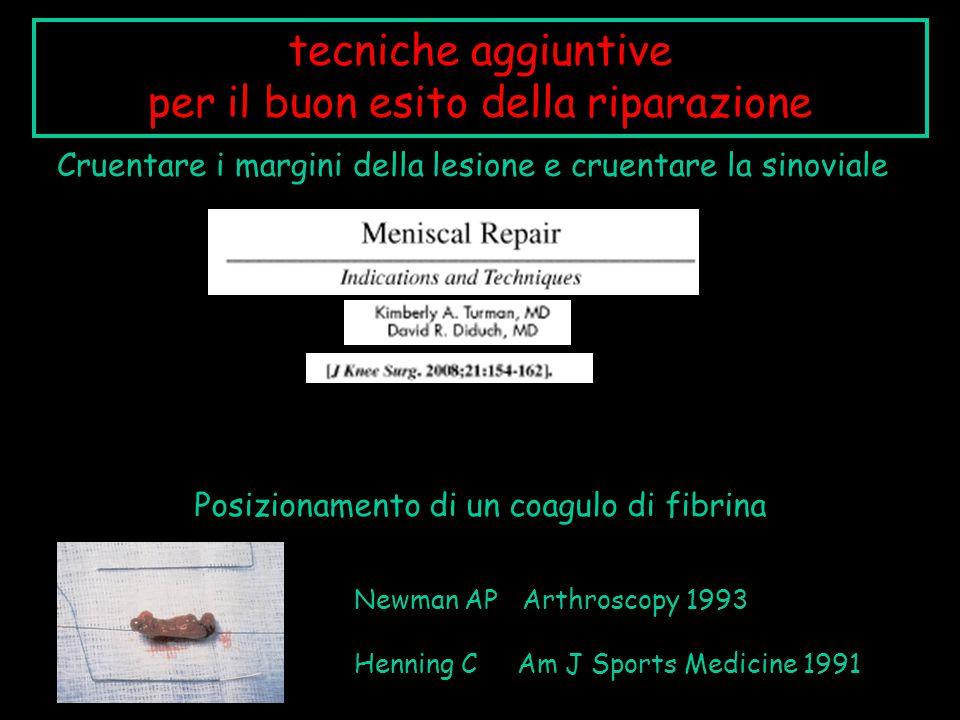 Cruentare i margini della lesione e cruentare la sinoviale tecniche aggiuntive per il buon esito della riparazione Posizionamento di un coagulo di fib