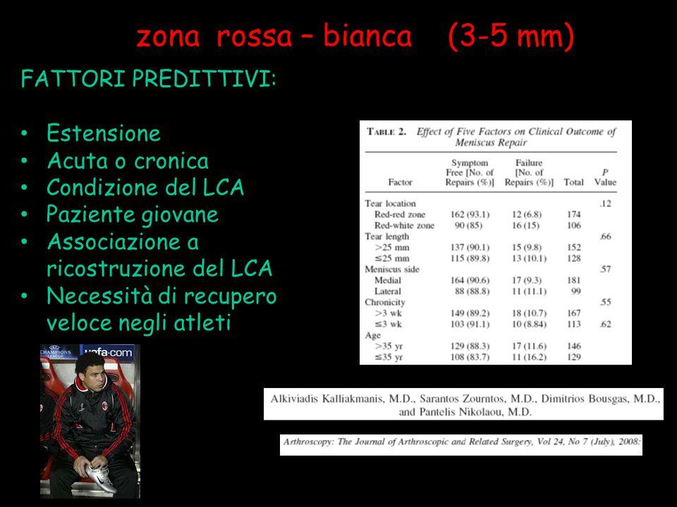 zona rossa – bianca (3-5 mm) FATTORI PREDITTIVI: Estensione Acuta o cronica Condizione del LCA Paziente giovane Associazione a ricostruzione del LCA N
