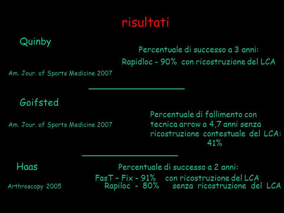 risultati Goifsted Percentuale di fallimento con Am. Jour. of Sports Medicine 2007 tecnica arrow a 4,7 anni senza ricostruzione contestuale del LCA: 4