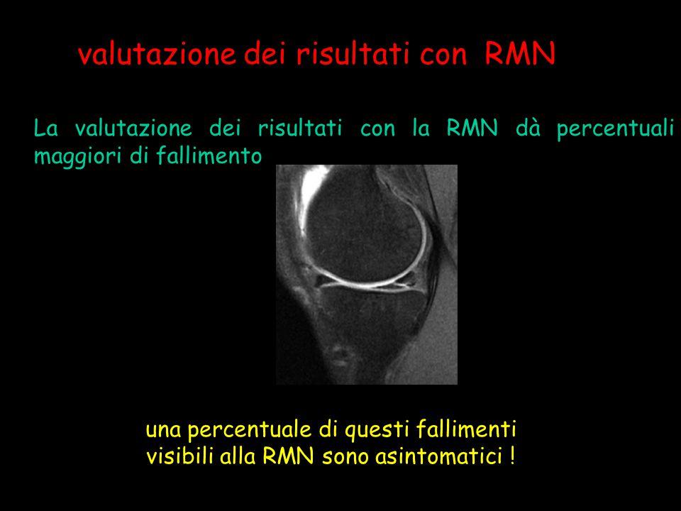 valutazione dei risultati con RMN La valutazione dei risultati con la RMN dà percentuali maggiori di fallimento una percentuale di questi fallimenti v