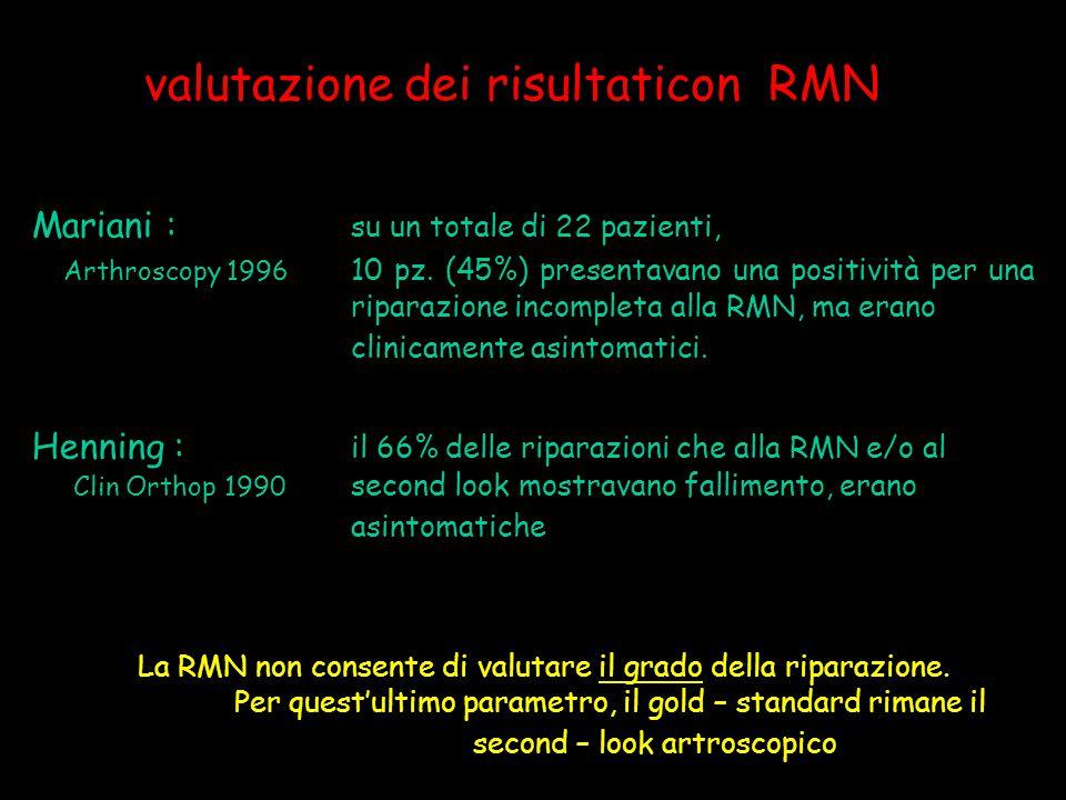 valutazione dei risultaticon RMN Mariani : su un totale di 22 pazienti, Arthroscopy 1996 10 pz. (45%) presentavano una positività per una riparazione