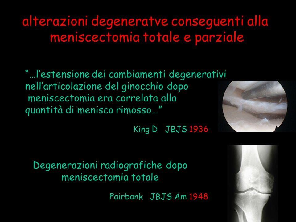 Notevole aumento delle pressioni da contatto nella meniscectomia Baratz - Fu Am J Sport Med 1986 …anche se la meniscectomia da sola non aumenta significativamente l'instabilità, associata a deficit dell' LCA aumenta notevolmente la lassità anteriore… Levy JBJS Am 1982 alterazioni degenerative conseguenti alla meniscectomia totale e parziale