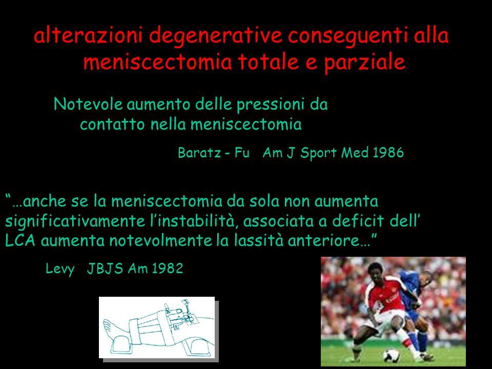 """Notevole aumento delle pressioni da contatto nella meniscectomia Baratz - Fu Am J Sport Med 1986 """"…anche se la meniscectomia da sola non aumenta signi"""