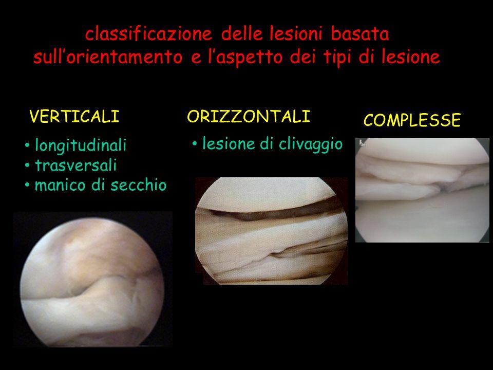 classificazione delle lesioni basata sull'orientamento e l'aspetto dei tipi di lesione longitudinali trasversali manico di secchio lesione di clivaggi