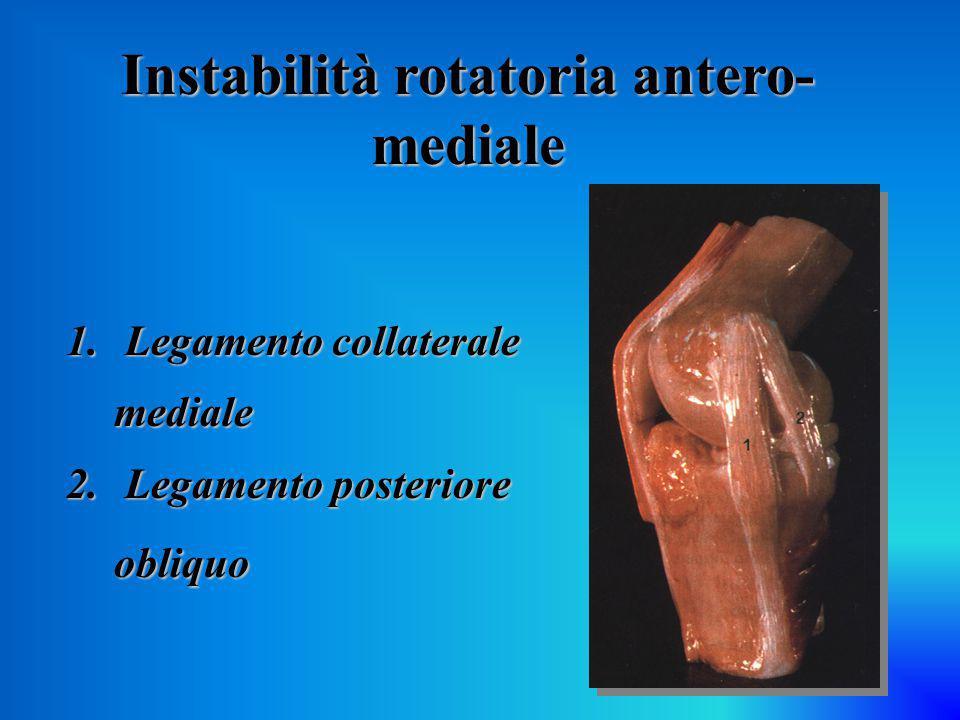 Instabilità rotatoria antero- mediale 1. Legamento collaterale mediale 2. Legamento posteriore obliquo