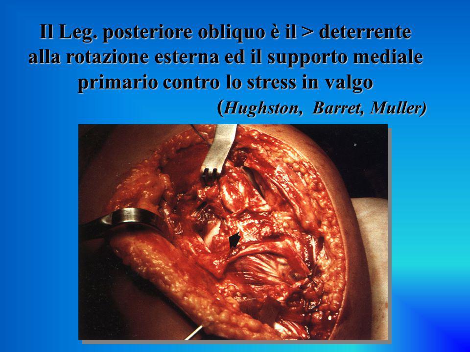 Il Leg. posteriore obliquo è il > deterrente alla rotazione esterna ed il supporto mediale primario contro lo stress in valgo ( Hughston, Barret, Mull