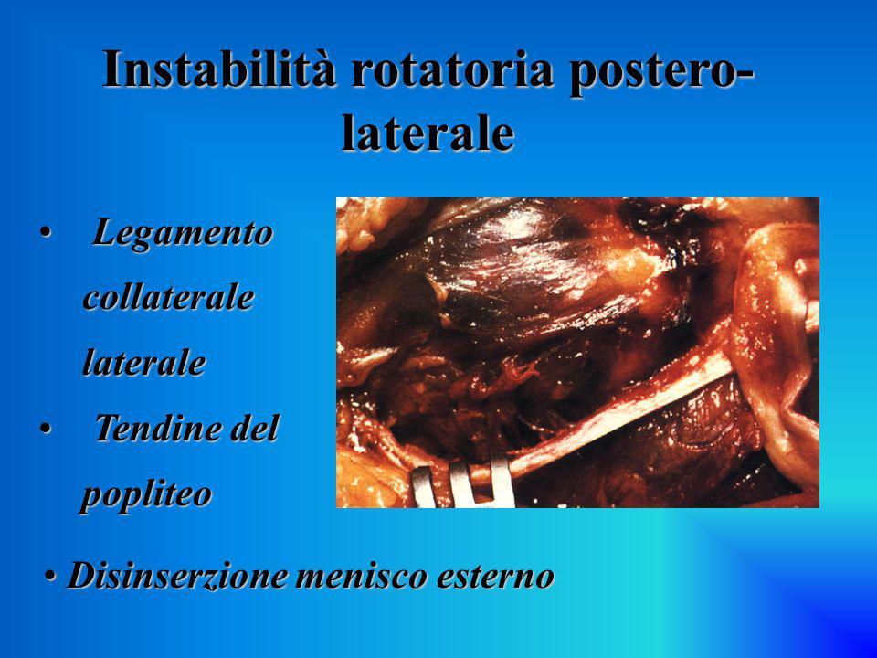 Instabilità rotatoria postero- laterale Legamento collaterale laterale Legamento collaterale laterale Tendine del popliteo Tendine del popliteo Disins