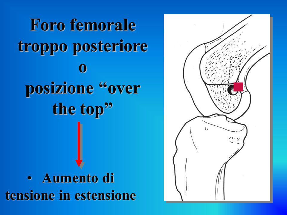"""Foro femorale troppo posteriore o posizione """"over the top"""" Aumento di tensione in estensione Aumento di tensione in estensione"""