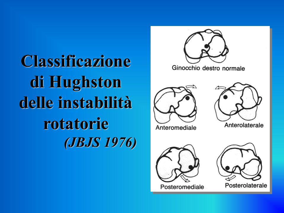 La gola intercondiloidea può essere stenotica per: Stenosi congenita Stenosi congenita Osteofitosi Osteofitosi