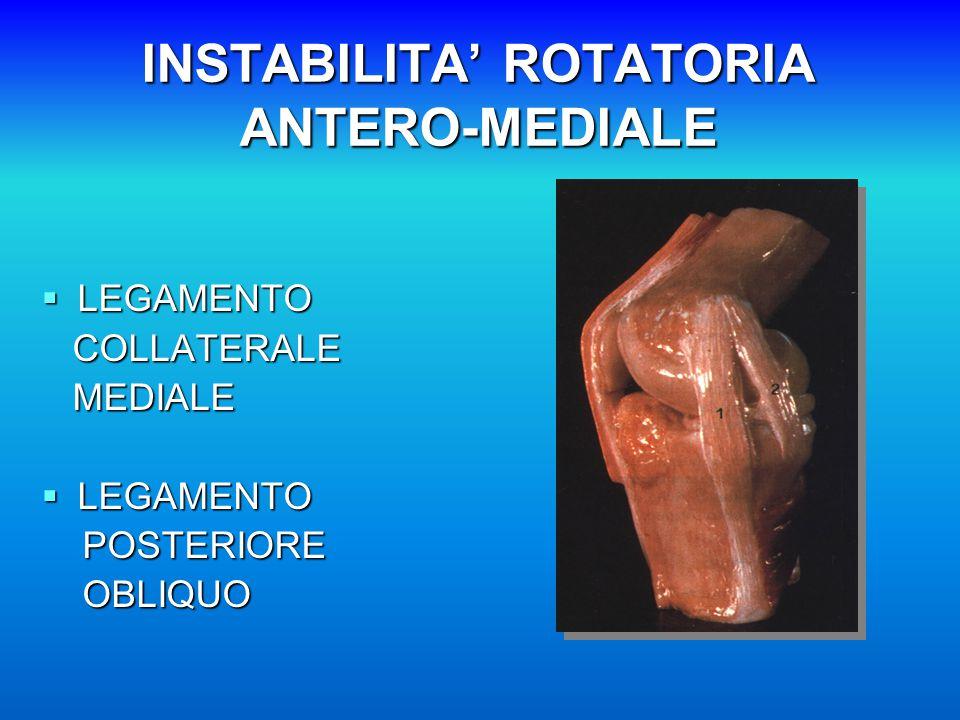 INSTABILITA' ROTATORIA ANTERO-MEDIALE  LEGAMENTO COLLATERALE COLLATERALE MEDIALE MEDIALE  LEGAMENTO POSTERIORE POSTERIORE OBLIQUO OBLIQUO