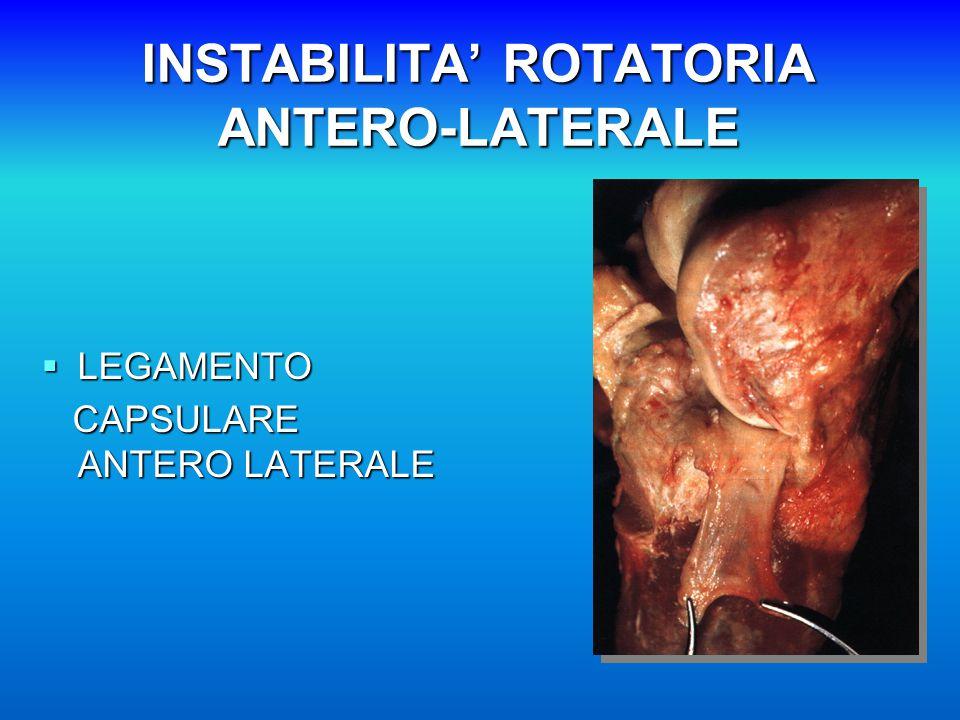 INSTABILITA' ROTATORIA ANTERO-LATERALE  LEGAMENTO CAPSULARE ANTERO LATERALE CAPSULARE ANTERO LATERALE