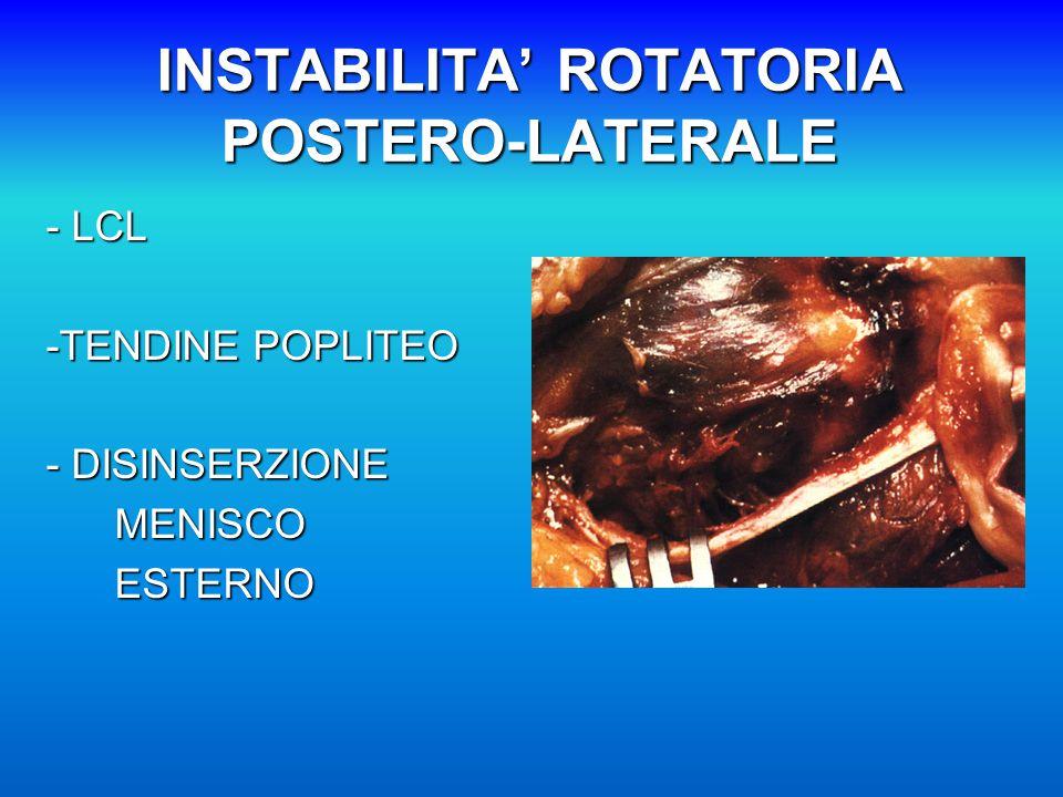 INSTABILITA' ROTATORIA POSTERO-LATERALE - LCL -TENDINE POPLITEO - DISINSERZIONE MENISCO MENISCO ESTERNO ESTERNO