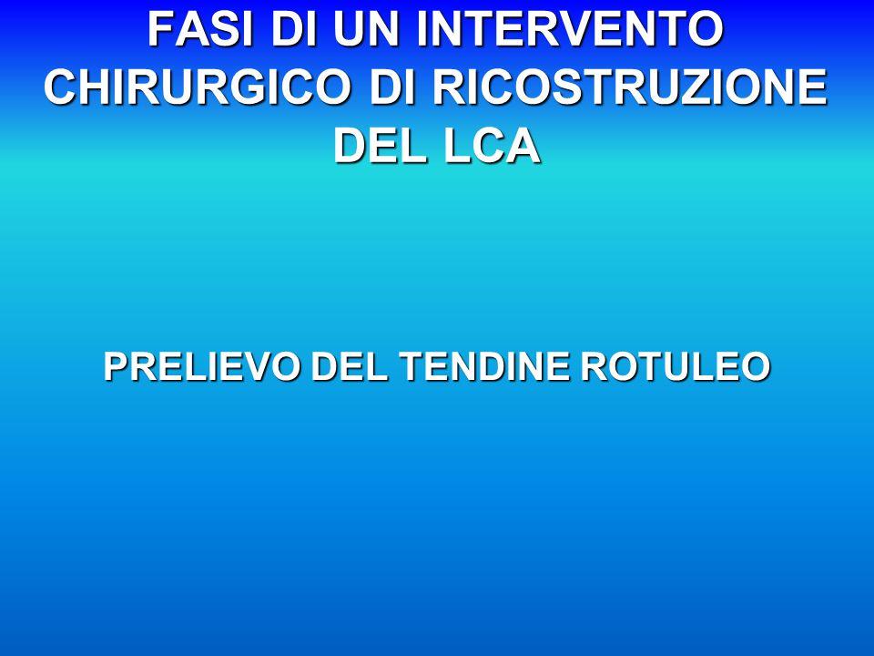 FASI DI UN INTERVENTO CHIRURGICO DI RICOSTRUZIONE DEL LCA PRELIEVO DEL TENDINE ROTULEO