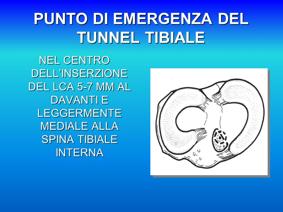PUNTO DI EMERGENZA DEL TUNNEL TIBIALE NEL CENTRO DELL'INSERZIONE DEL LCA 5-7 MM AL DAVANTI E LEGGERMENTE MEDIALE ALLA SPINA TIBIALE INTERNA