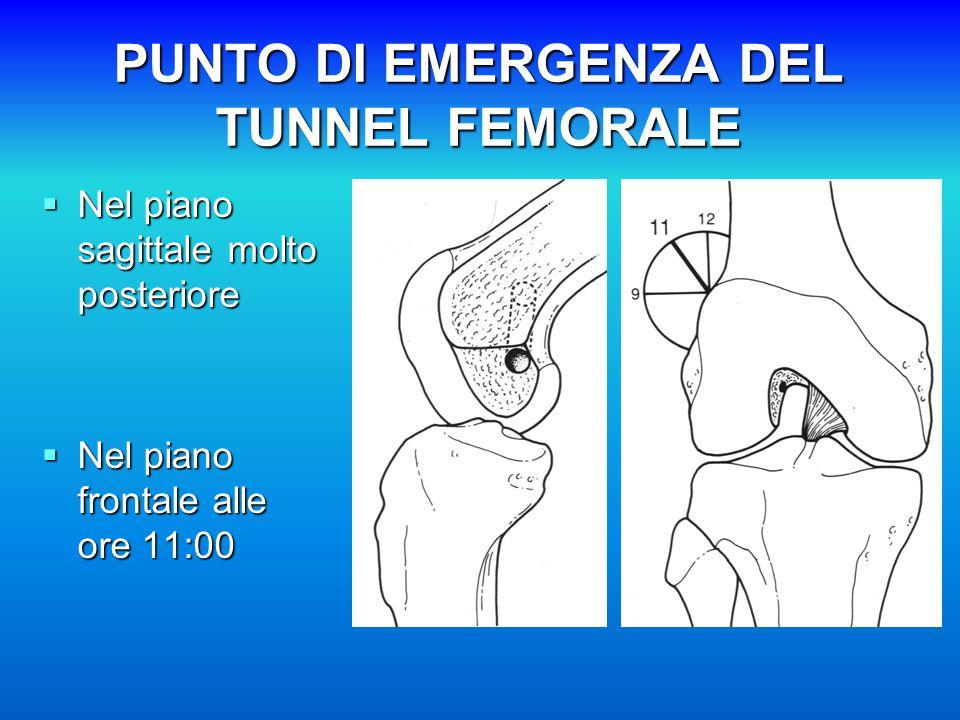 PUNTO DI EMERGENZA DEL TUNNEL FEMORALE  Nel piano sagittale molto posteriore  Nel piano frontale alle ore 11:00