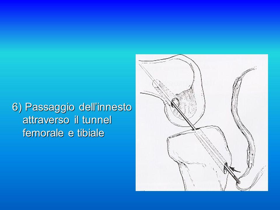 6) Passaggio dell'innesto attraverso il tunnel femorale e tibiale
