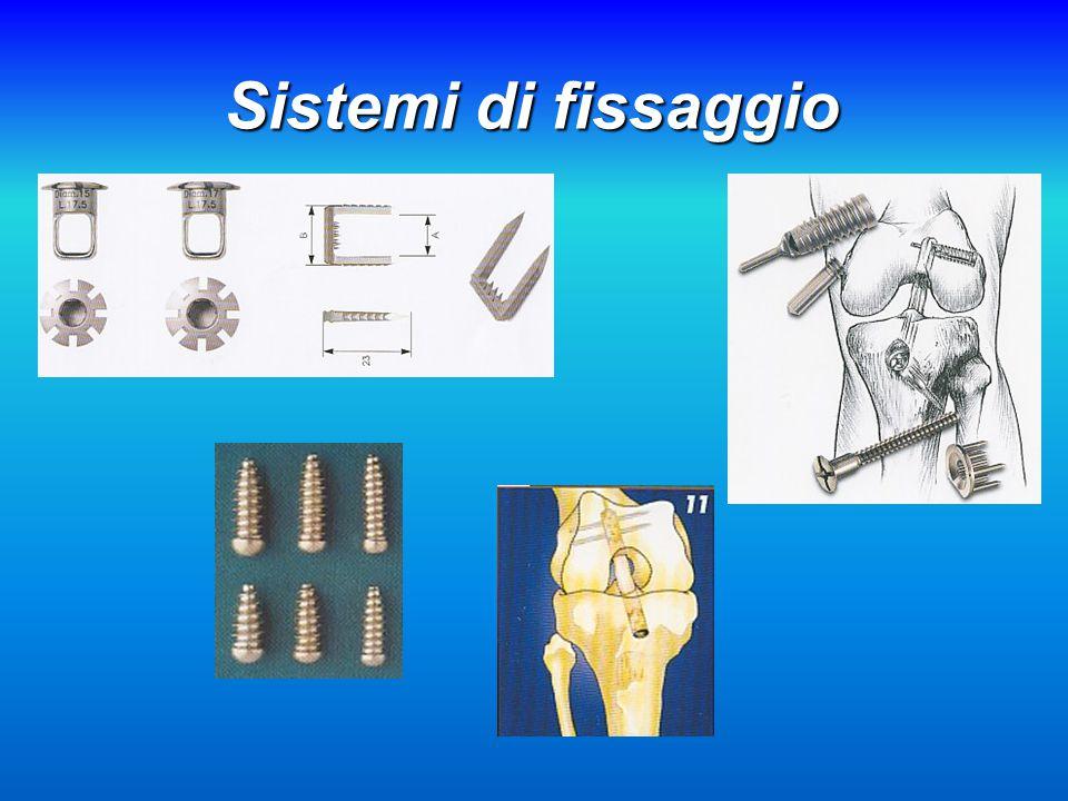 Sistemi di fissaggio