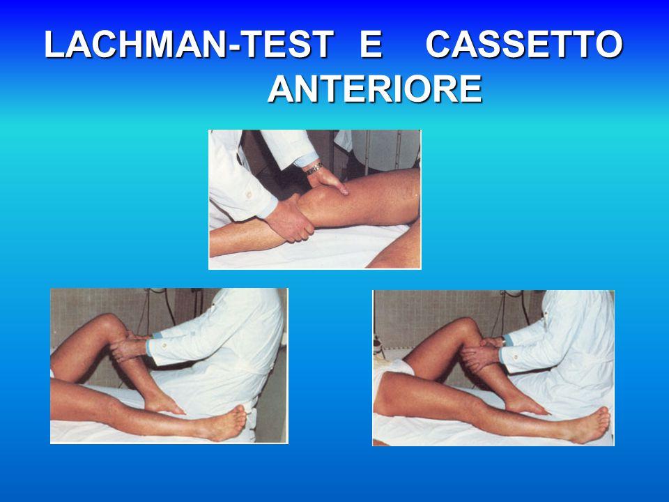 LACHMAN-TEST E CASSETTO ANTERIORE