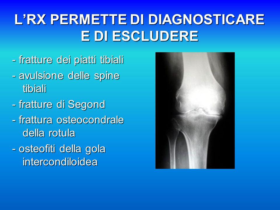 L'RX PERMETTE DI DIAGNOSTICARE E DI ESCLUDERE - fratture dei piatti tibiali - avulsione delle spine tibiali - fratture di Segond - frattura osteocondrale della rotula - osteofiti della gola intercondiloidea