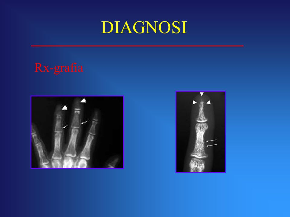 Rx-grafia DIAGNOSI