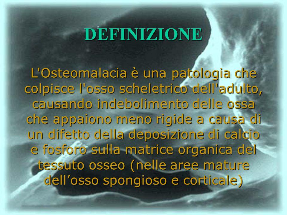 L'Osteomalacia è una patologia che colpisce l'osso scheletrico dell'adulto, causando indebolimento delle ossa che appaiono meno rigide a causa di un d