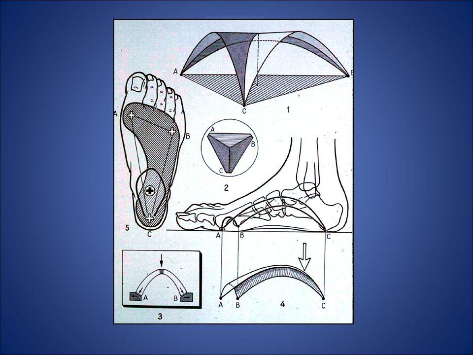 Associato a valgismo per lassità legamentosa O quale esito di un piede talo-valgo congenito Associato ad alterazioni scheletriche scheletriche Piede piatto