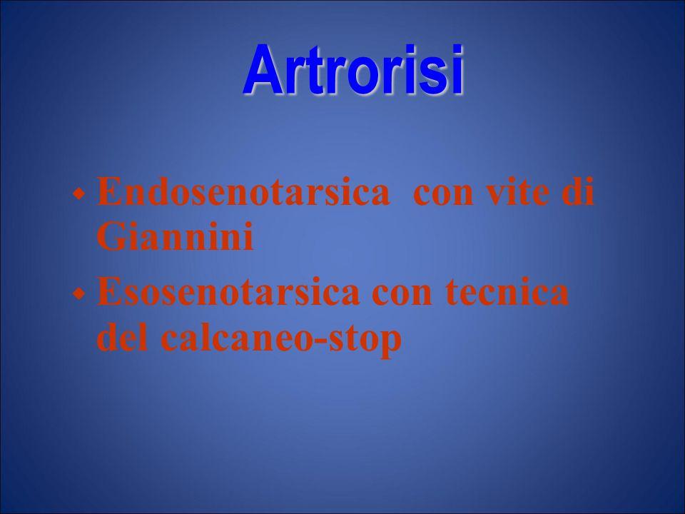 Artrorisi  Endosenotarsica con vite di Giannini  Esosenotarsica con tecnica del calcaneo-stop