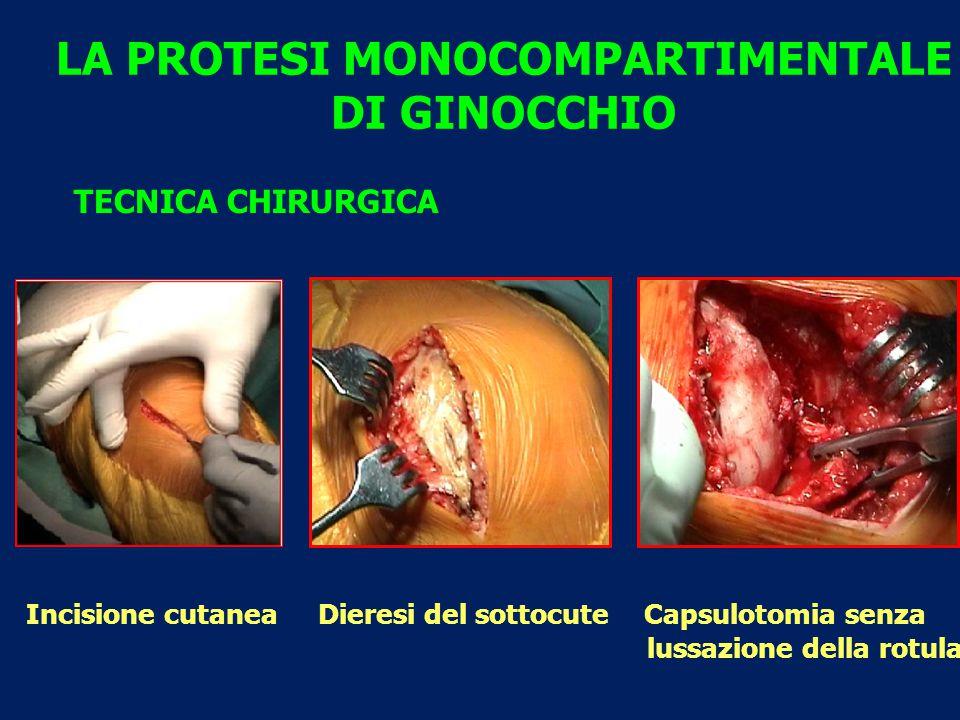 LA PROTESI MONOCOMPARTIMENTALE DI GINOCCHIO TECNICA CHIRURGICA Incisione cutanea Dieresi del sottocute Capsulotomia senza lussazione della rotula