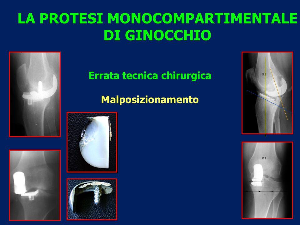 LA PROTESI MONOCOMPARTIMENTALE DI GINOCCHIO Errata tecnica chirurgica Malposizionamento
