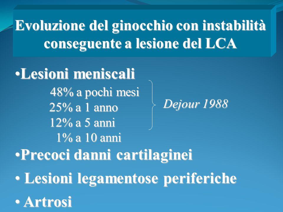 Lesioni meniscaliLesioni meniscali 48% a pochi mesi 48% a pochi mesi 25% a 1 anno 25% a 1 anno 12% a 5 anni 12% a 5 anni 1% a 10 anni 1% a 10 anni Pre
