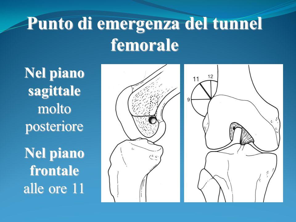 Punto di emergenza del tunnel femorale Nel piano sagittale molto posteriore Nel piano frontale alle ore 11