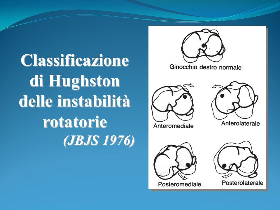 Classificazione di Hughston delle instabilità rotatorie (JBJS 1976)