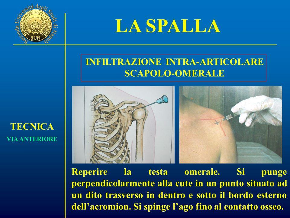 LA SPALLA TECNICA VIA ANTERIORE INFILTRAZIONE INTRA-ARTICOLARE SCAPOLO-OMERALE Reperire la testa omerale.
