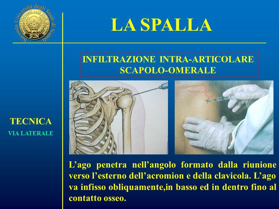 LA SPALLA TECNICA VIA LATERALE INFILTRAZIONE INTRA-ARTICOLARE SCAPOLO-OMERALE L'ago penetra nell'angolo formato dalla riunione verso l'esterno dell'acromion e della clavicola.