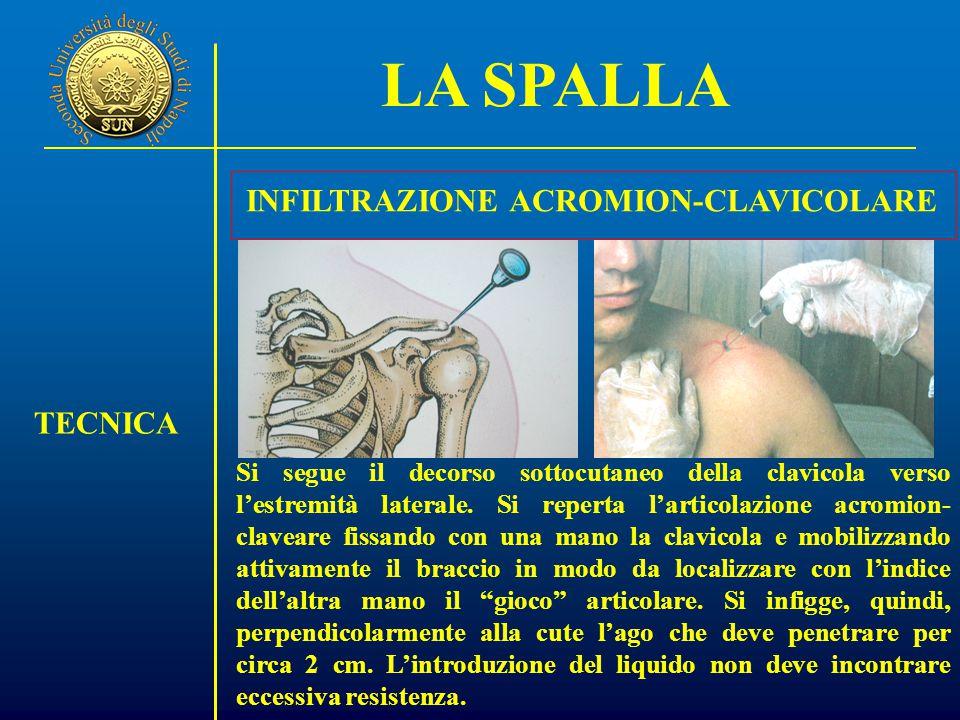 LA SPALLA TECNICA INFILTRAZIONE ACROMION-CLAVICOLARE Si segue il decorso sottocutaneo della clavicola verso l'estremità laterale.