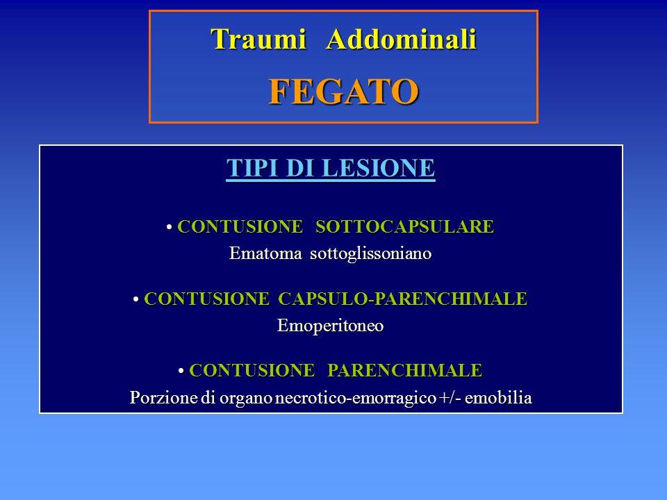 Traumi Addominali FEGATO TIPI DI LESIONE CONTUSIONE SOTTOCAPSULARE CONTUSIONE SOTTOCAPSULARE Ematoma sottoglissoniano CONTUSIONE CAPSULO-PARENCHIMALE