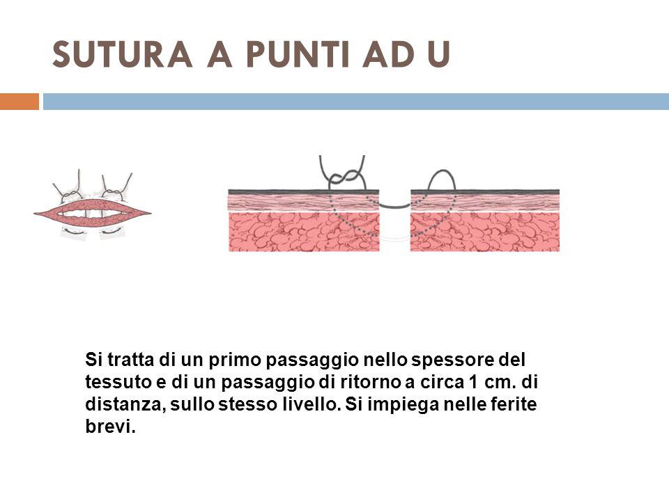 SUTURA A PUNTI AD U Si tratta di un primo passaggio nello spessore del tessuto e di un passaggio di ritorno a circa 1 cm.