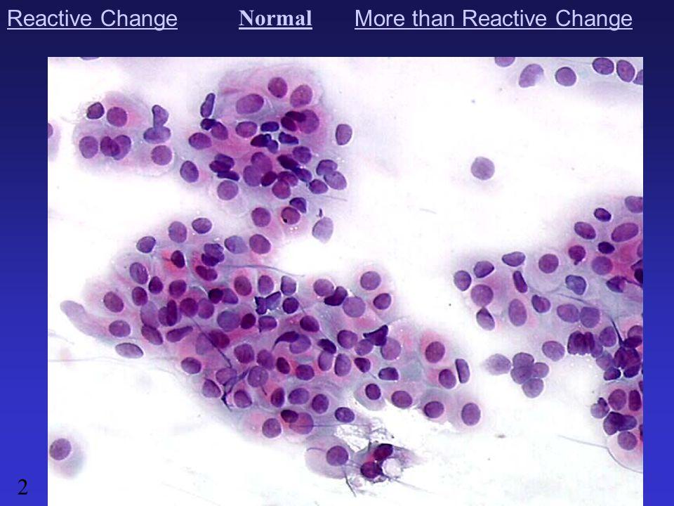 Image 25 - normal Endometrial cells in under 40 year-old woman, not menopaused.