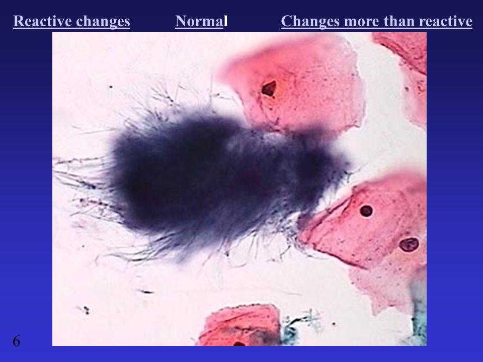 Reactive changesNormaNormalChanges more than reactive 6