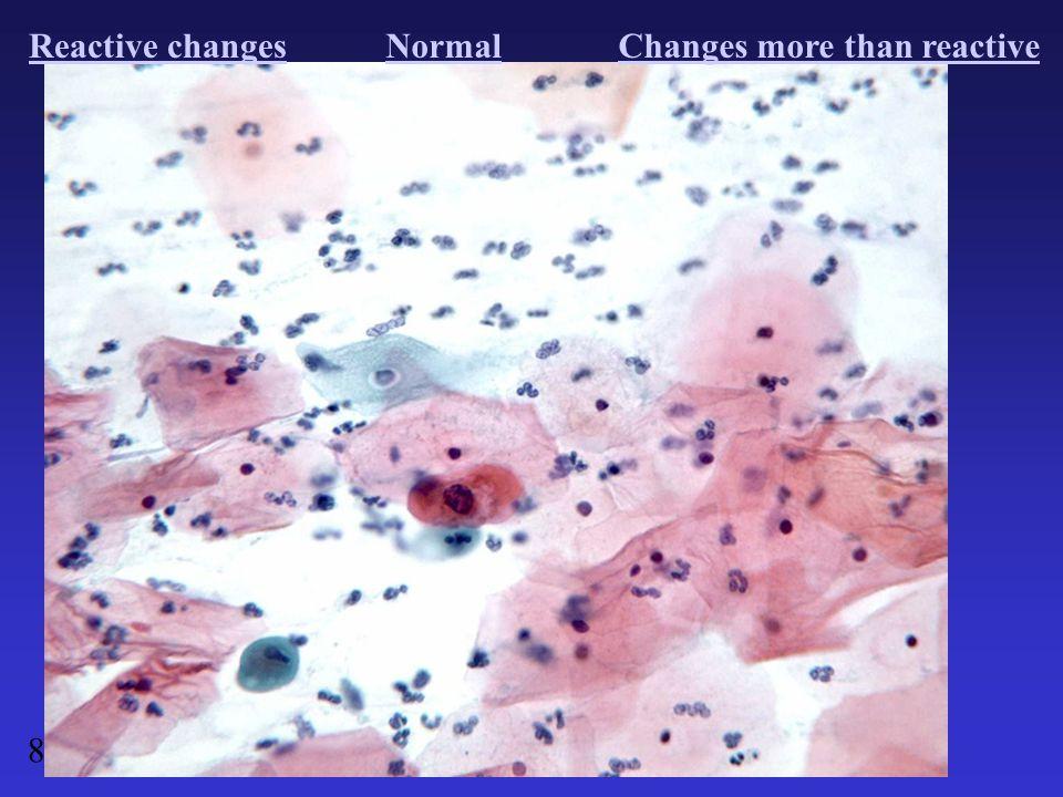 Reactive changesNormalChanges more than reactive 8