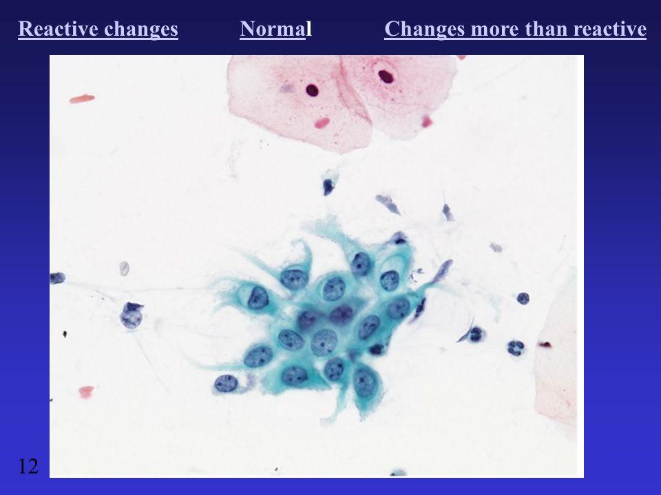 Reactive changesNormaNormalChanges more than reactive 12