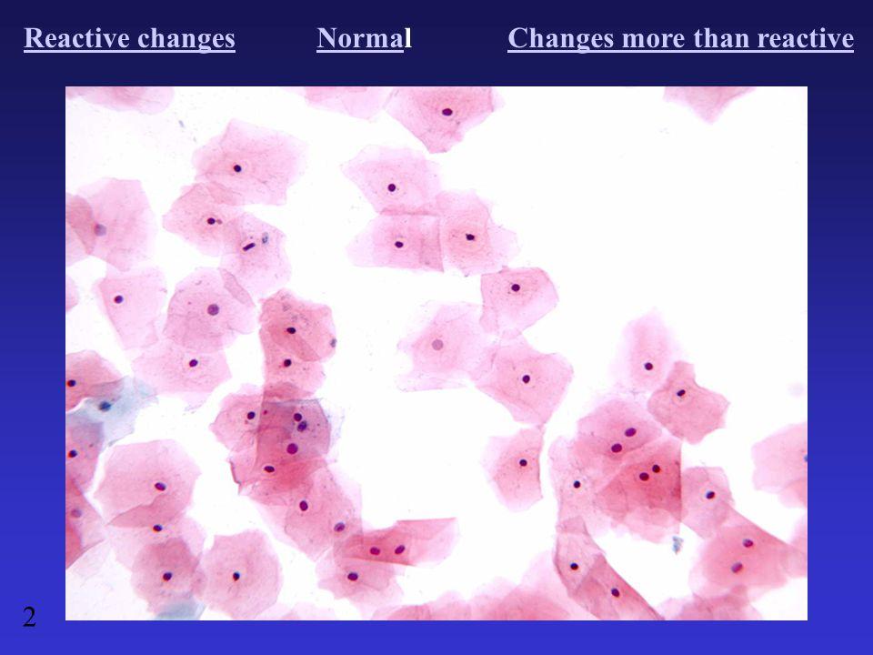 Reactive changesNormaNormalChanges more than reactive 2