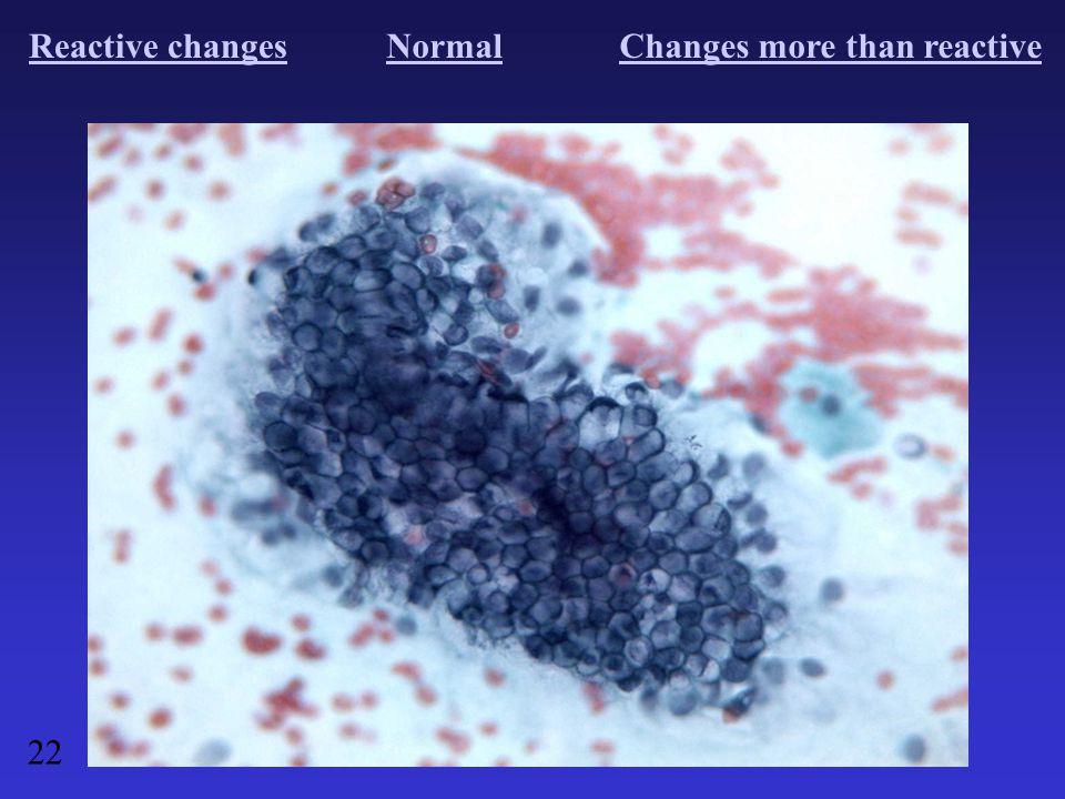 Reactive changesNormalChanges more than reactive 22