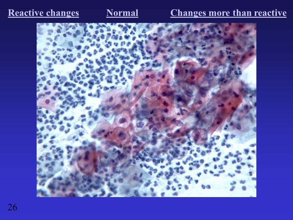 Reactive changesNormalChanges more than reactive 26