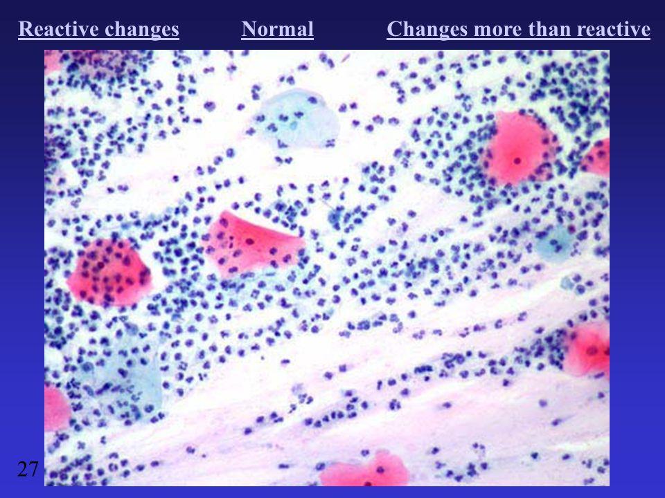 Reactive changesNormalChanges more than reactive 27