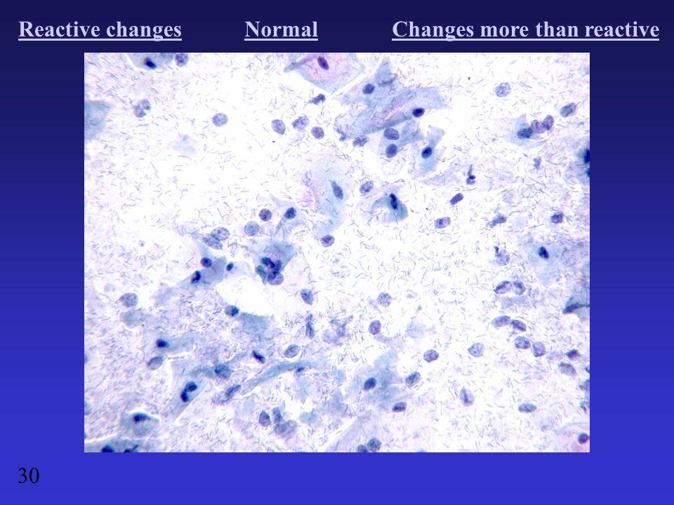 Reactive changesNormalChanges more than reactive 30