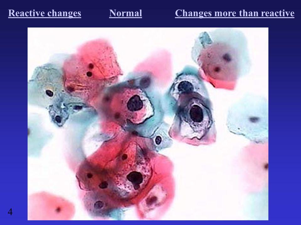 Reactive changesNormalChanges more than reactive 4