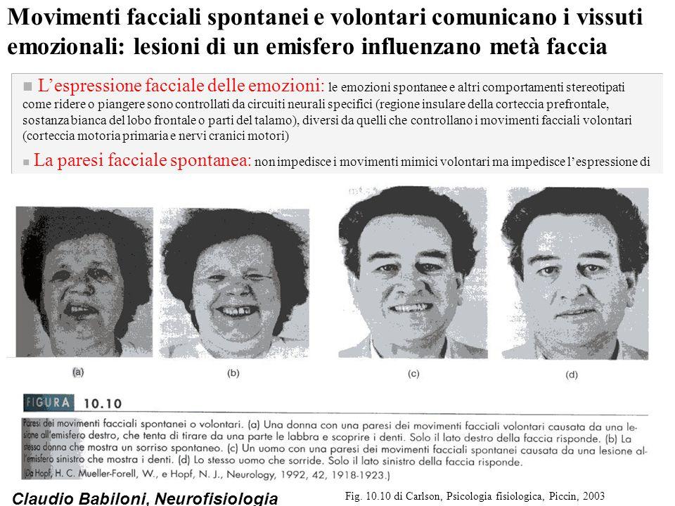 Claudio Babiloni, Neurofisiologia Movimenti facciali spontanei e volontari comunicano i vissuti emozionali: lesioni di un emisfero influenzano metà fa