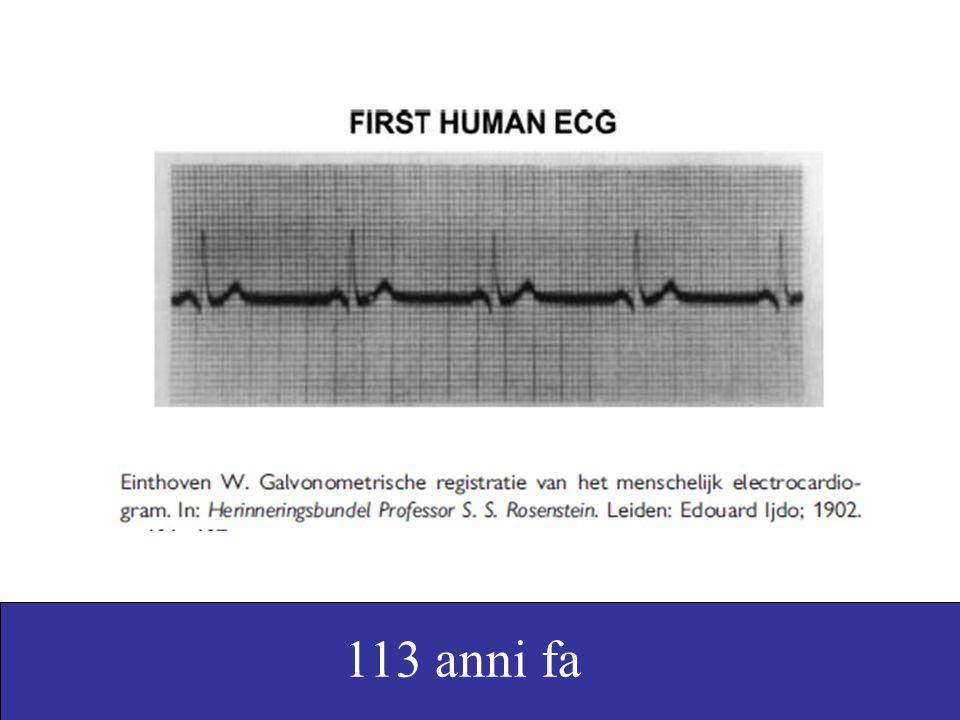 Go, A. S. et al. JAMA 2001;285:2370-2375. Un mese più tardi: l'ecg del signor B.D.