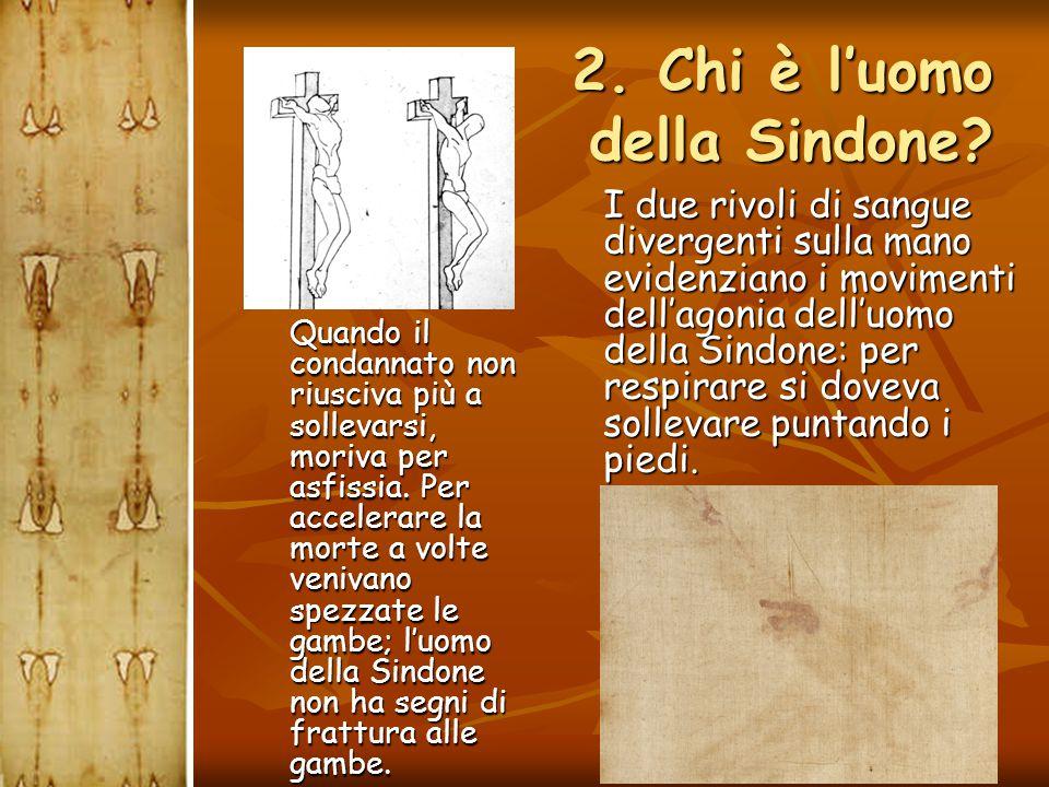  I due rivoli di sangue divergenti sulla mano evidenziano i movimenti dell'agonia dell'uomo della Sindone: per respirare si doveva sollevare puntando